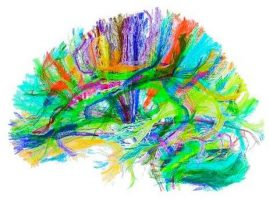 brain activity - mind enhancing gifts